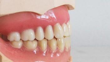 Paura del dentista: come superare l'ansia e il timore
